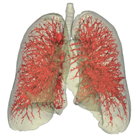 Exemple d'un arbre vasculaire pulmonaire extrait à partir d'une acquisition scanner angiographique